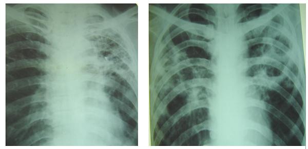 X-quang lao phổi