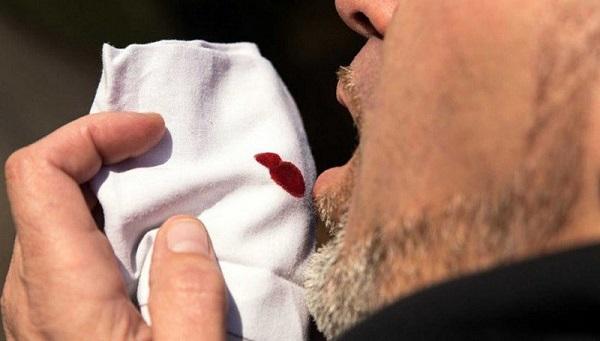 Khạc đờm ra máu vào buổi sáng có nguy hiểm không?