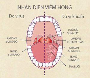 Phân biệt viêm họng do virus và do vi khuẩn