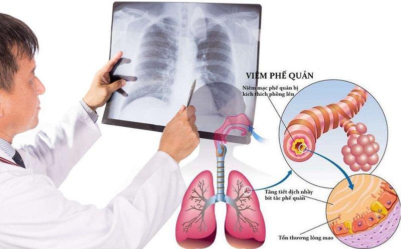 Viêm phế quản là gì? Nguyên nhân, triệu chứng, điều trị và kế hoạch chăm sóc