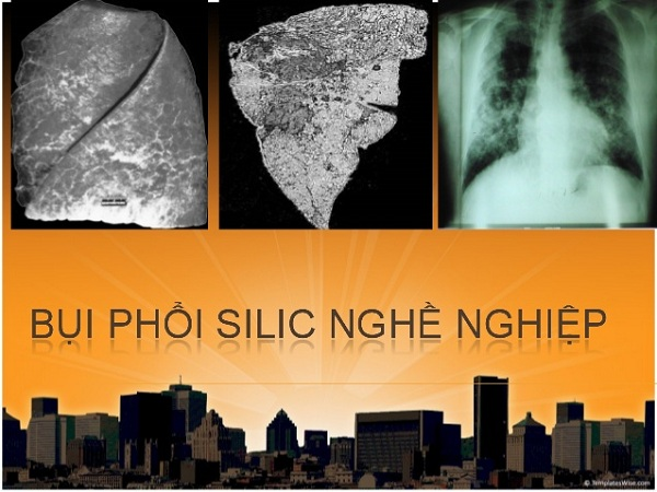 Bệnh bụi phổi silic