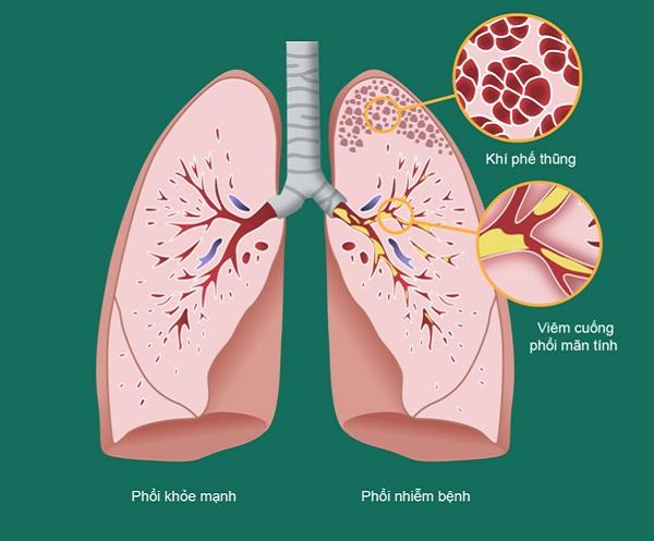 Bệnh phổi tắc nghẽn mạn tính COPD là gì, chữa được không, sống được bao lâu?