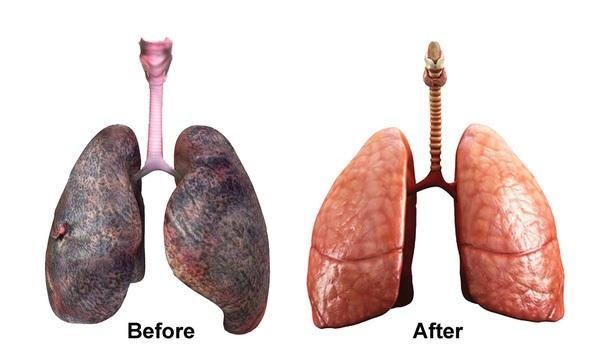 Cách làm sạch phổi rẻ, an toàn và hiệu quả bất ngờ