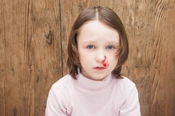 Chảy máu cam là bệnh gì, có nguy hiểm không? Mẹo chữa hiệu quả