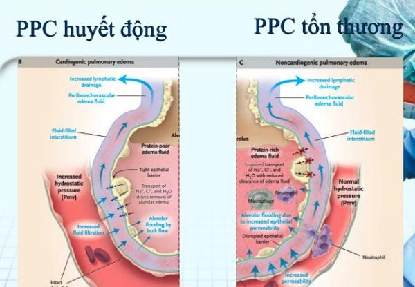 Phù phổi cấp là gì? Phác đồ điều trị và chăm sóc phù phổi cấp Bộ Y tế