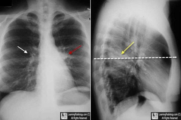 Rốn phổi đậm là gì, có nguy hiểm không?