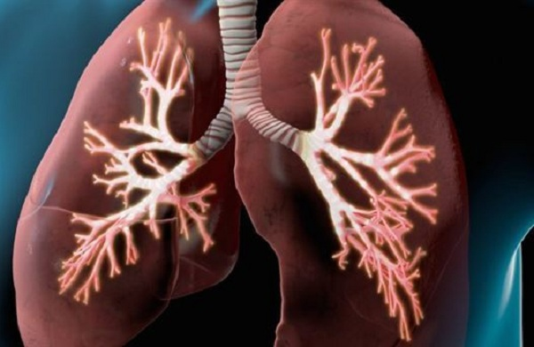 Viêm phế quản phổi ở người lớn có nguy hiểm không?