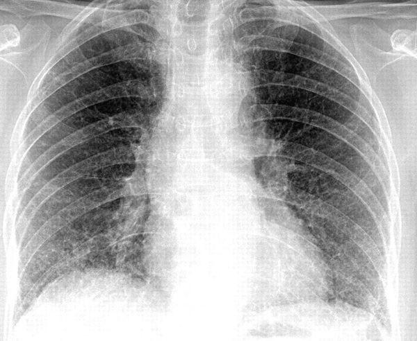 Hình ảnh X - quang viêm phổi