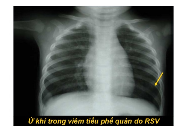 x quang viêm tiểu phế quản cấp