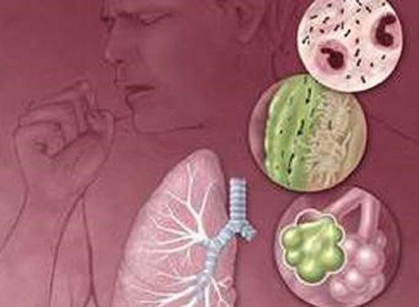 Sưng phổi là gì? Có chữa được không?