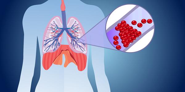 Nhồi máu phổi cách chẩn đoán và điều trị hiệu quả