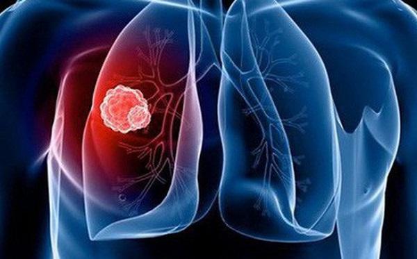 Ung thư phổi là gì, có chữa được không, sống được bao lâu?
