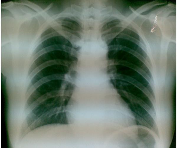 X-quang phổi