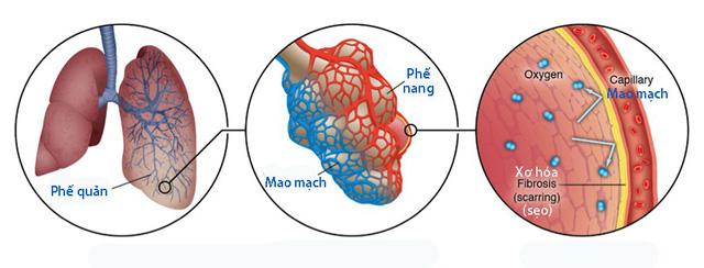 Xơ phổi là gì? Bệnh có chết không, nên ăn gì và cách điều trị