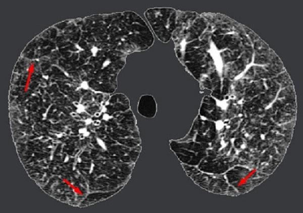 Viêm phổi kẽ là gì, nguyên nhân, triệu chứng và cách điều trị?
