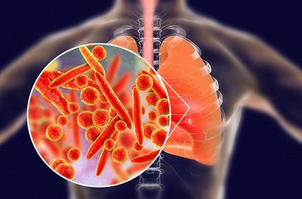 viêm phổi thùy
