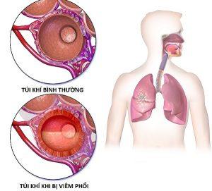 Viêm phổi cấp là gì?