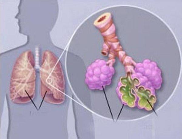Viêm phổi do phế cầu và những điều cần biết