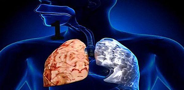 Viêm phổi hoại tử là gì? Cách phòng ngừa hiệu quả nhất