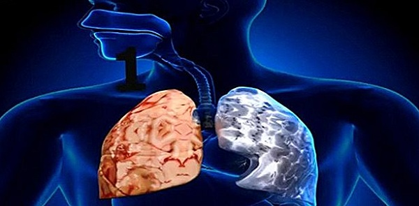 Viêm phổi hoại tử