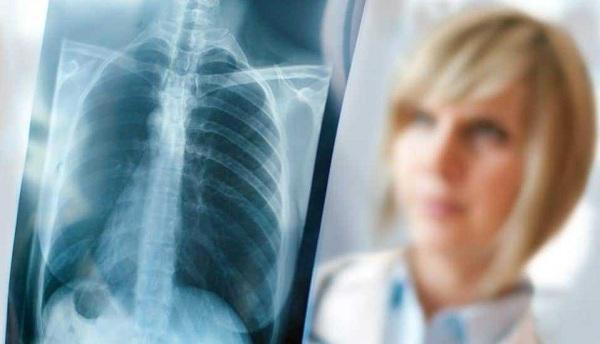 Hình ảnh X-quang phổi có thâm nhiễm kéo dài
