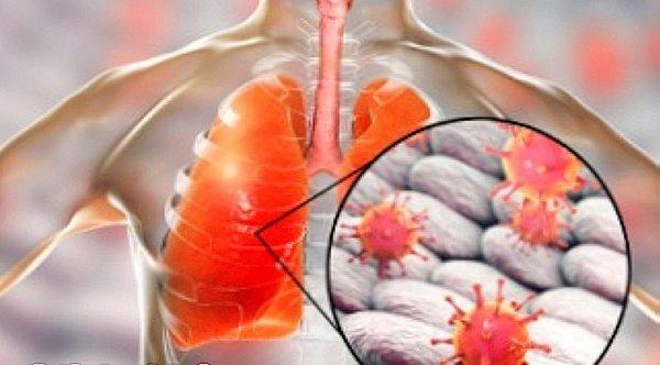 Viêm phổi virus RSV, Adenovirus là gì? Đặc điểm, hình ảnh nhận biết