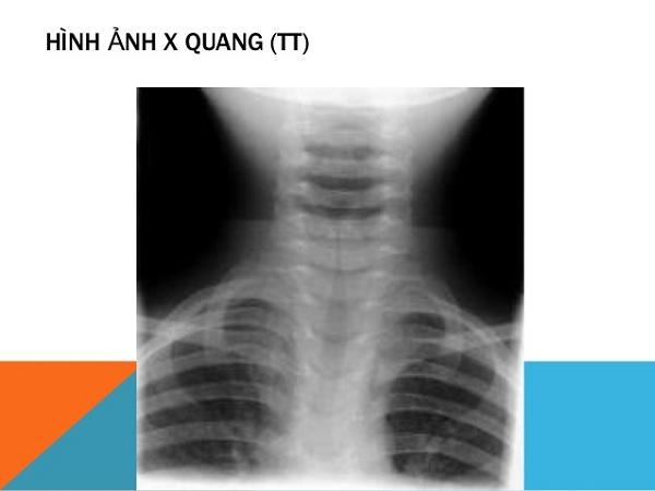 Hình ảnh x-quang viêm thanh khí quản