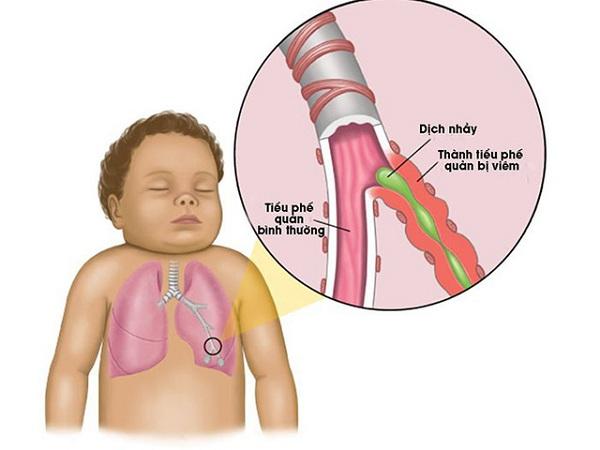 Viêm tiểu phế quản bội nhiễm