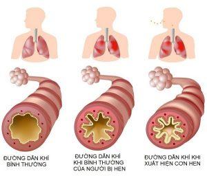 Hen suyễn