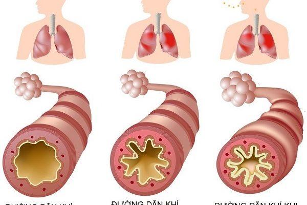 Hen suyễn là gì? Triệu chứng, thuốc điều trị và phòng ngừa hiệu quả