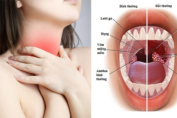 đau sưng họng triệu chứng viêm họng xuất tiết